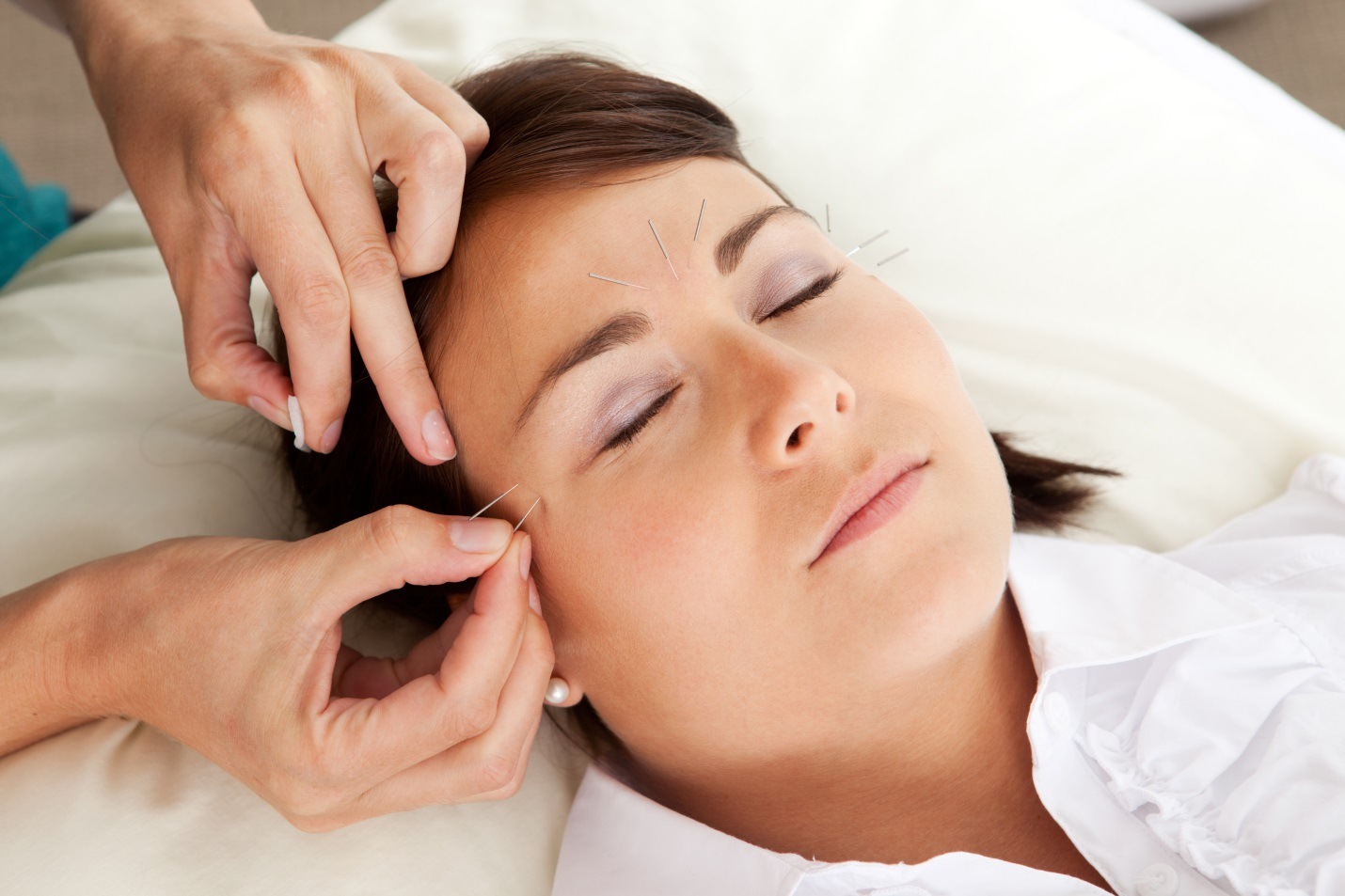 Rejuvenate Your Look With Cosmetic Acupuncture