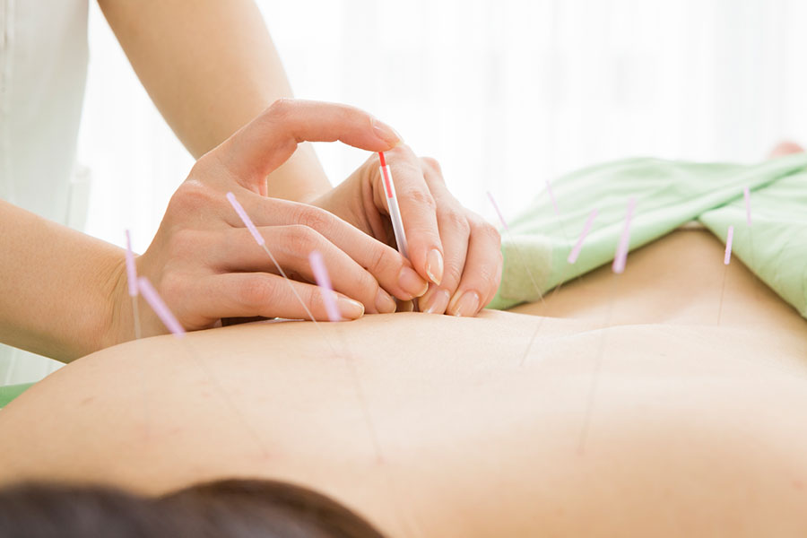 Acupuncture Helps Relive your Stress